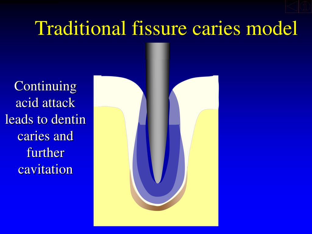 Traditional fissure caries model