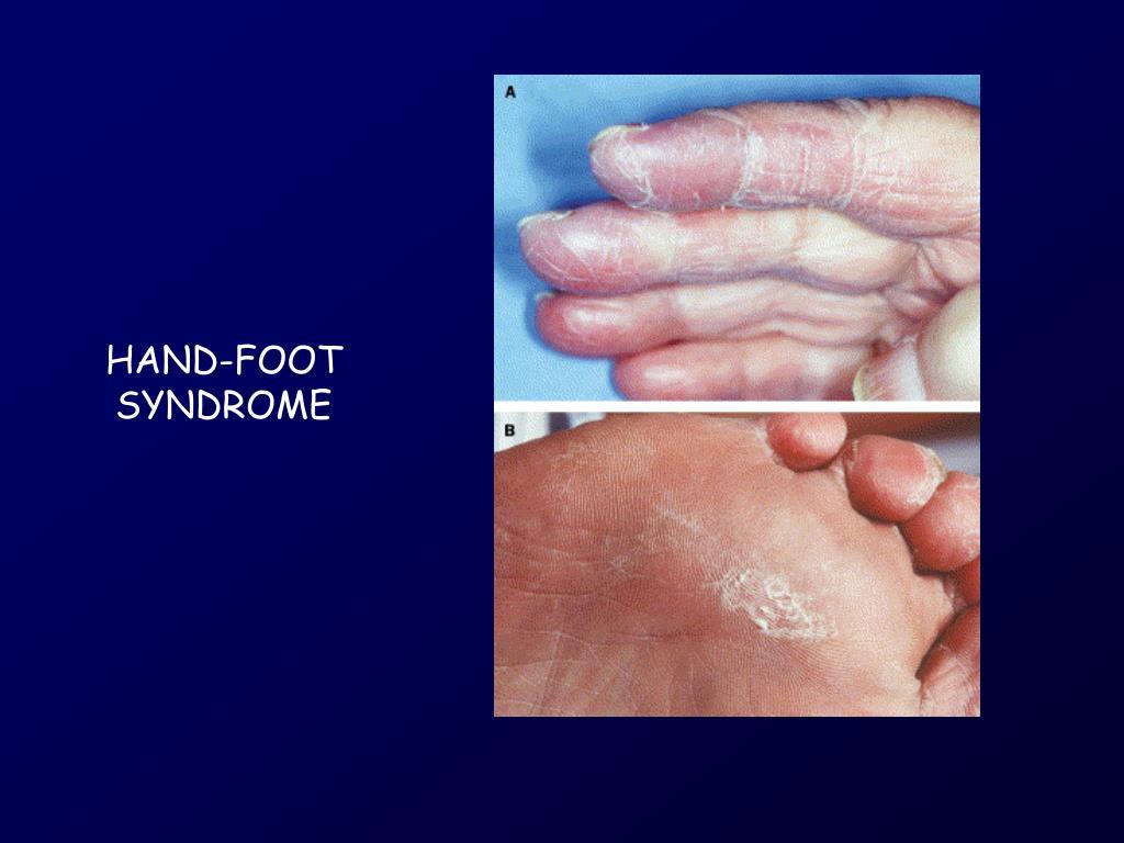 HAND-FOOT