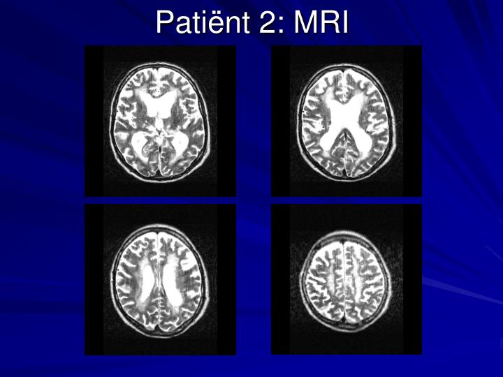 Patiënt 2: MRI