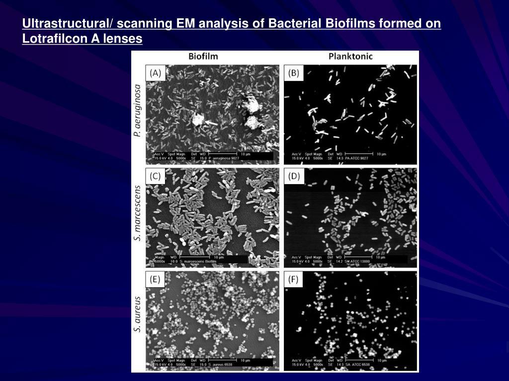 Ultrastructural/ scanning EM analysis of Bacterial Biofilms formed on Lotrafilcon A lenses