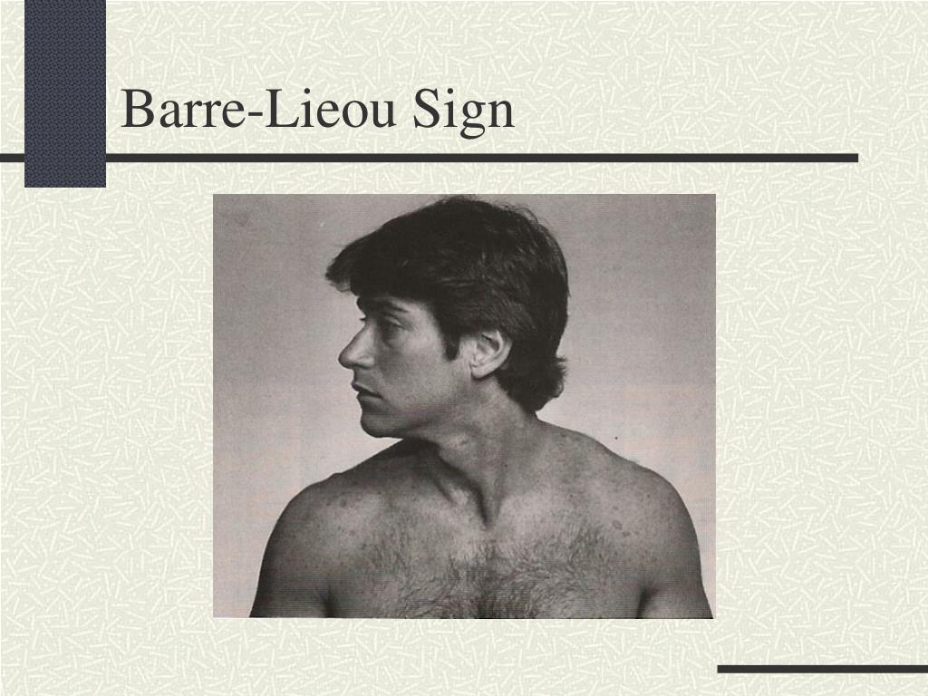 Barre-Lieou Sign