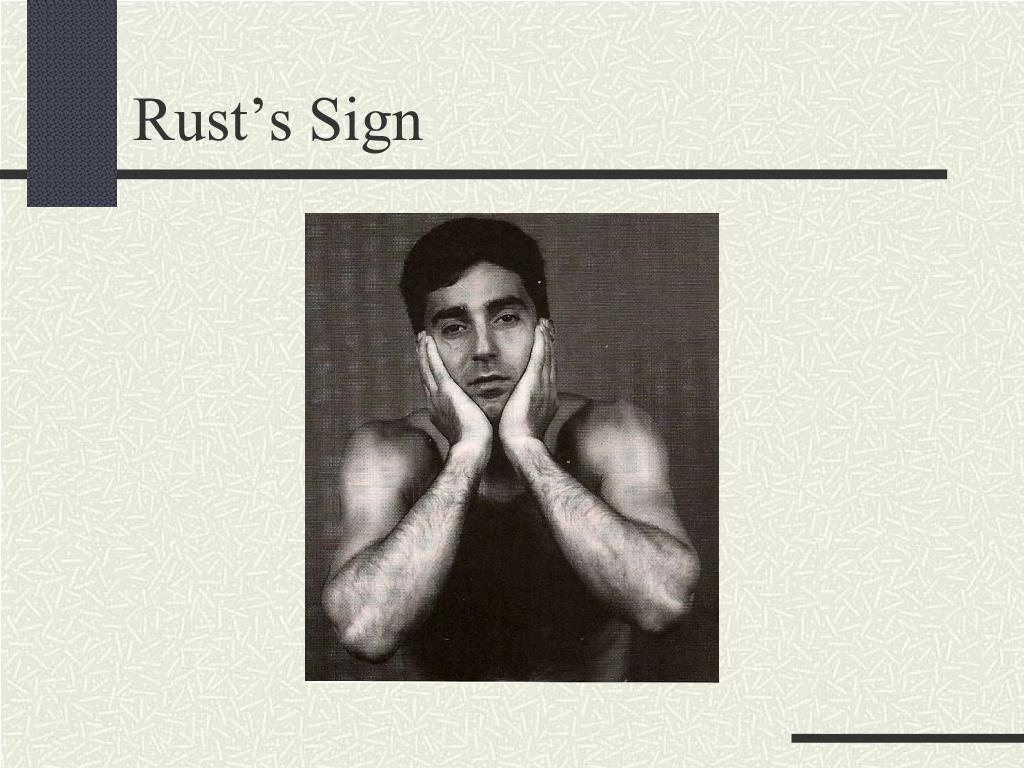 Rust's Sign