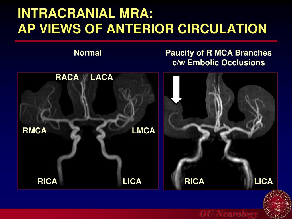 INTRACRANIAL MRA: