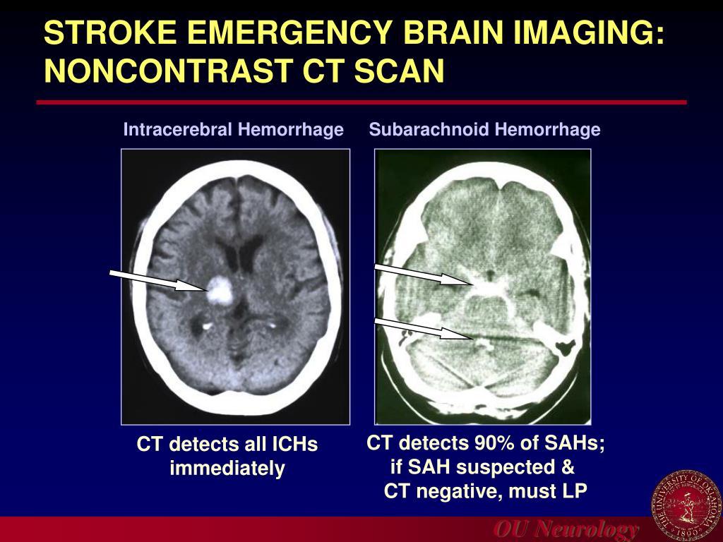 STROKE EMERGENCY BRAIN IMAGING: