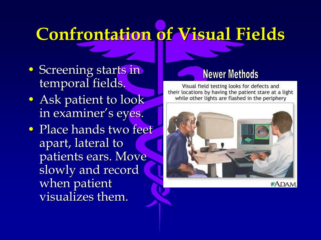 Confrontation of Visual Fields