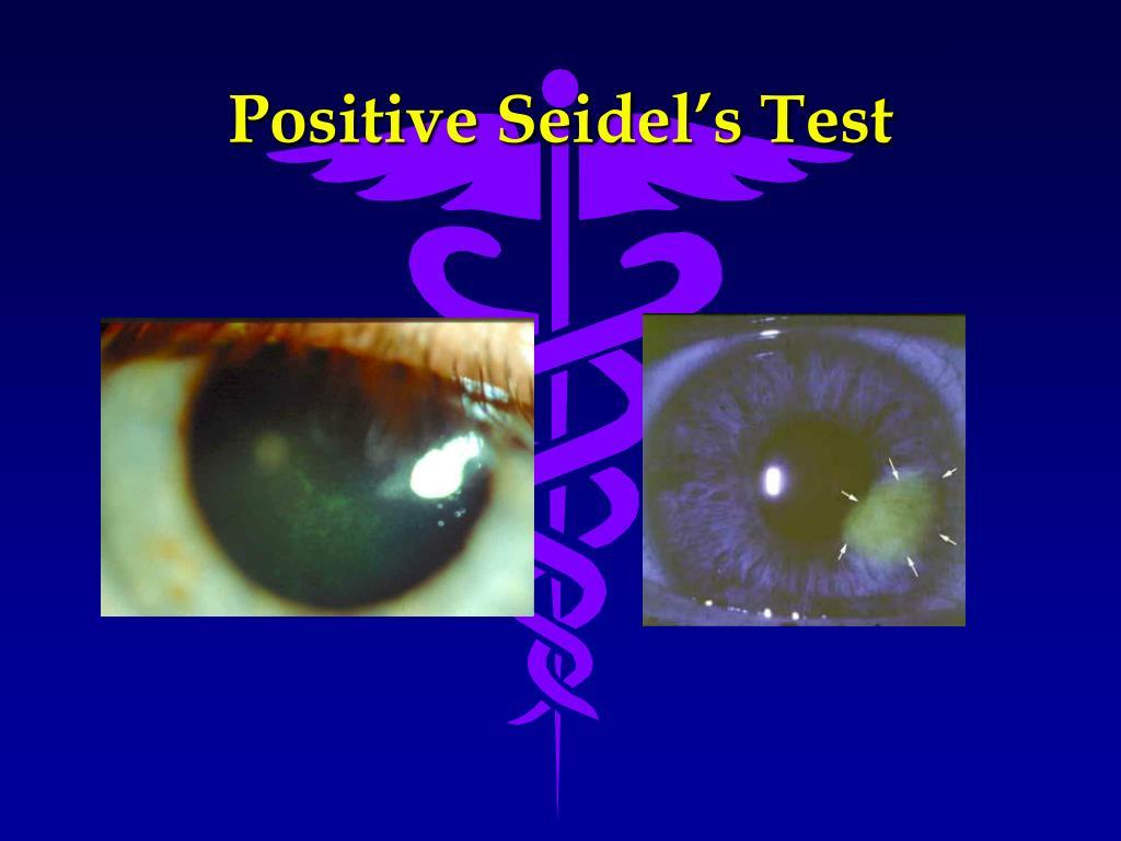 Positive Seidel's Test