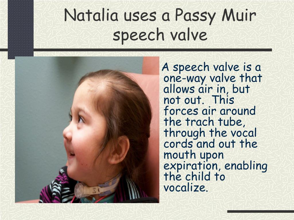 Natalia uses a Passy Muir speech valve