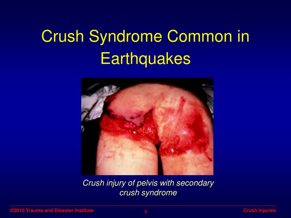 Crush injury of pelvis with secondary crush syndrome