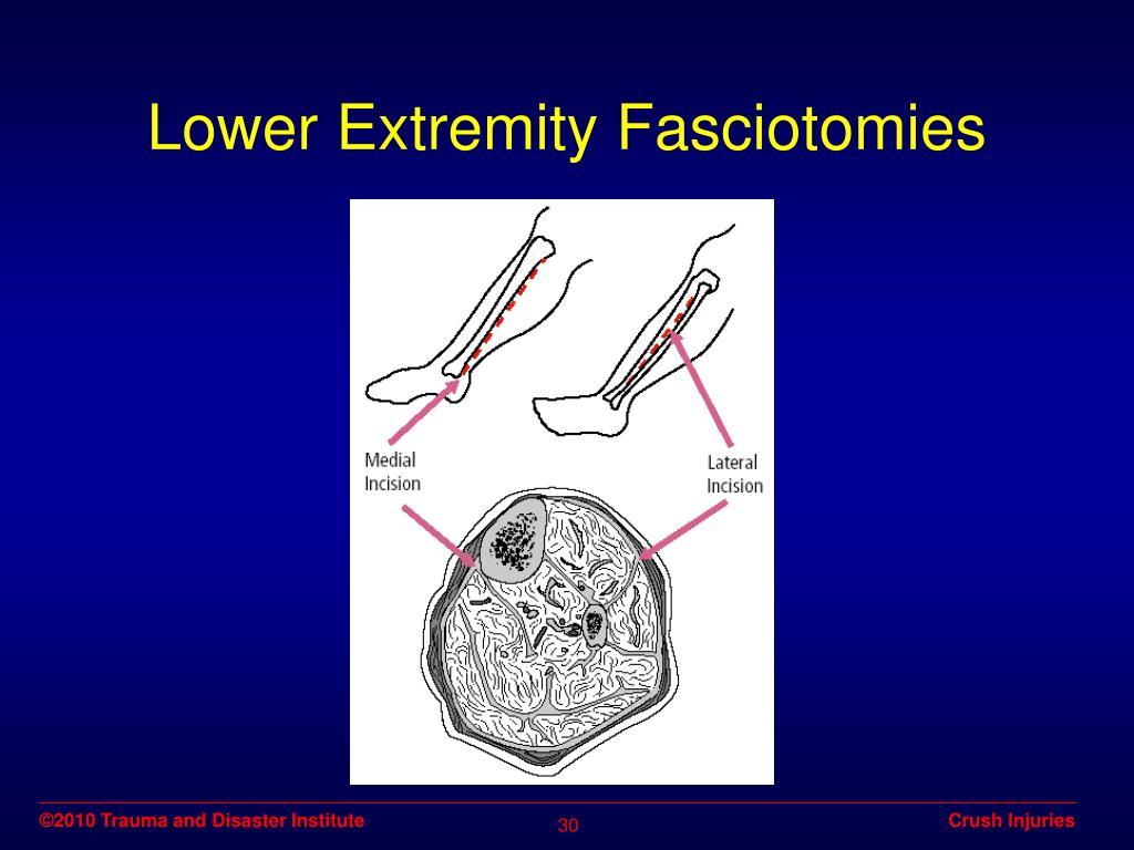 Lower Extremity Fasciotomies