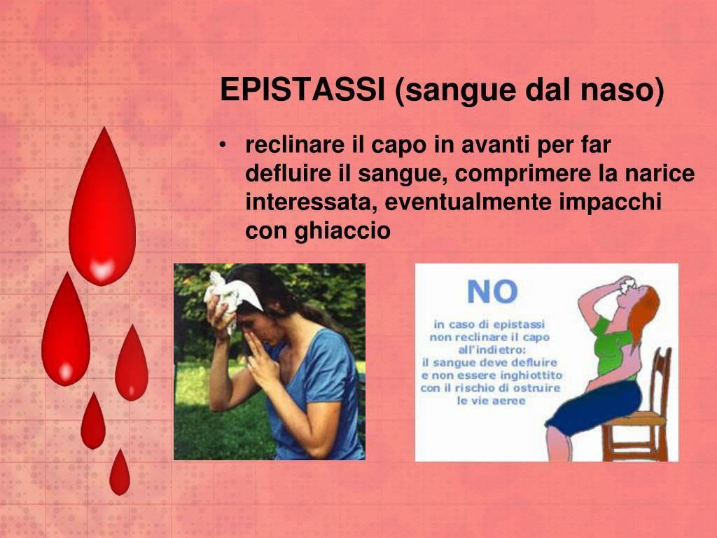 EPISTASSI (sangue dal naso)