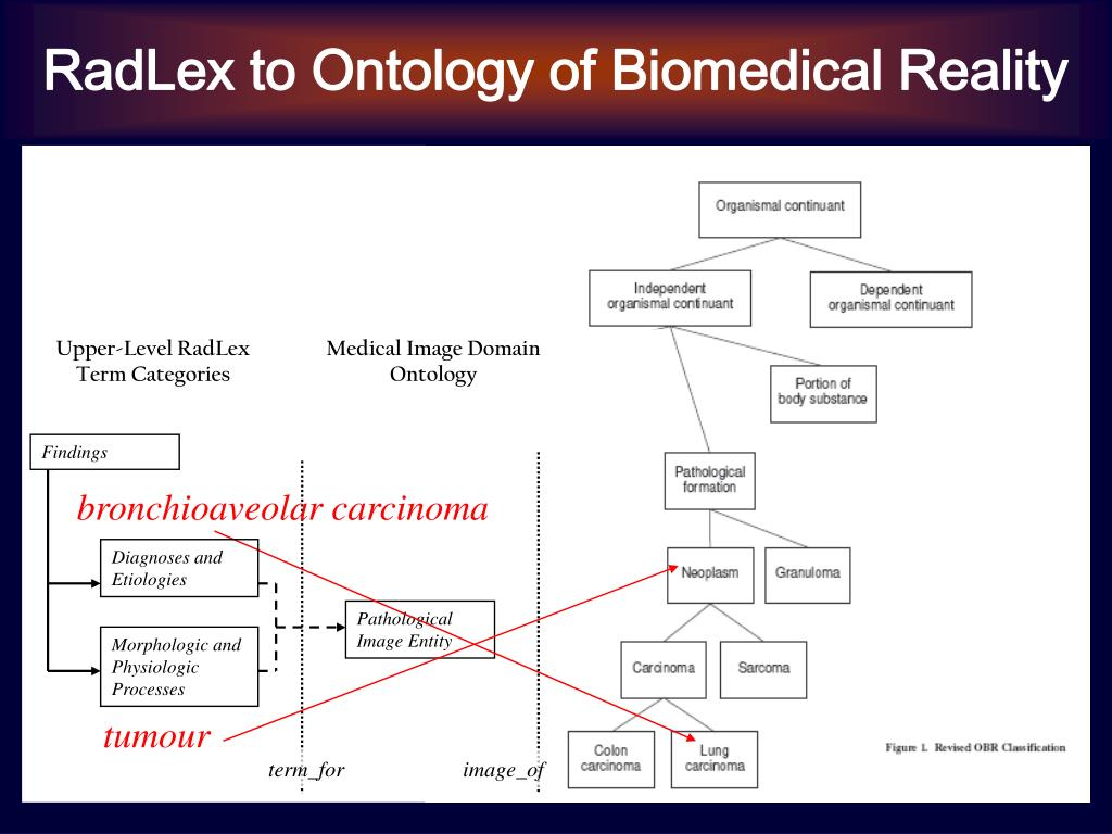 RadLex to Ontology of Biomedical Reality