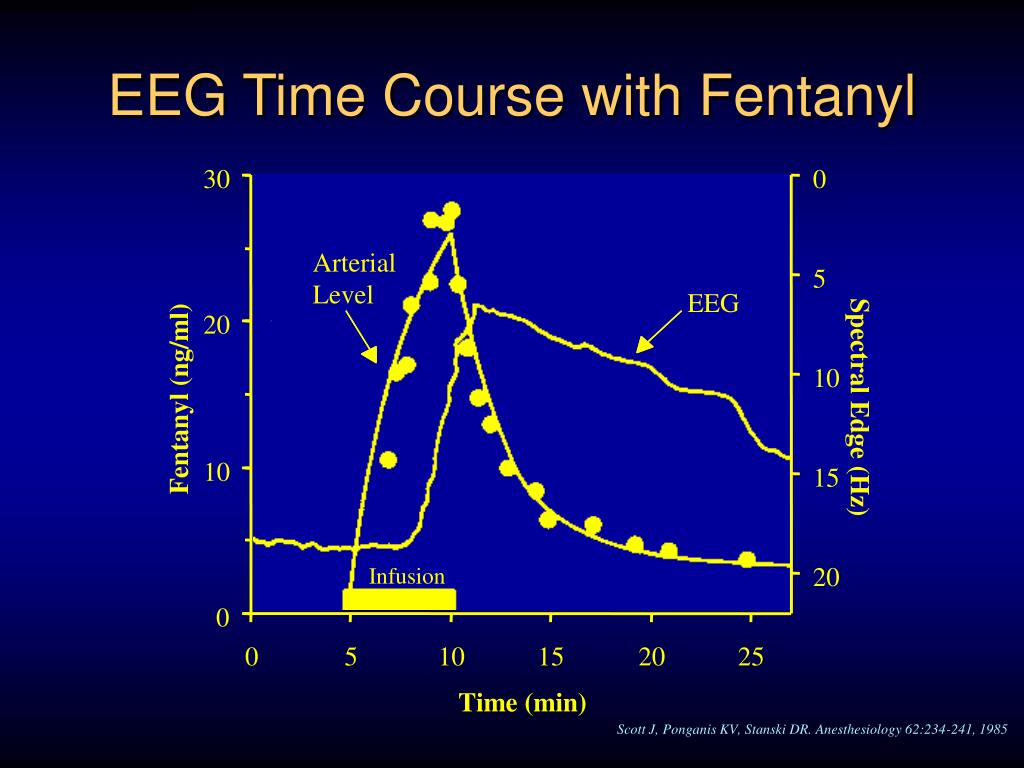 EEG Time Course with Fentanyl