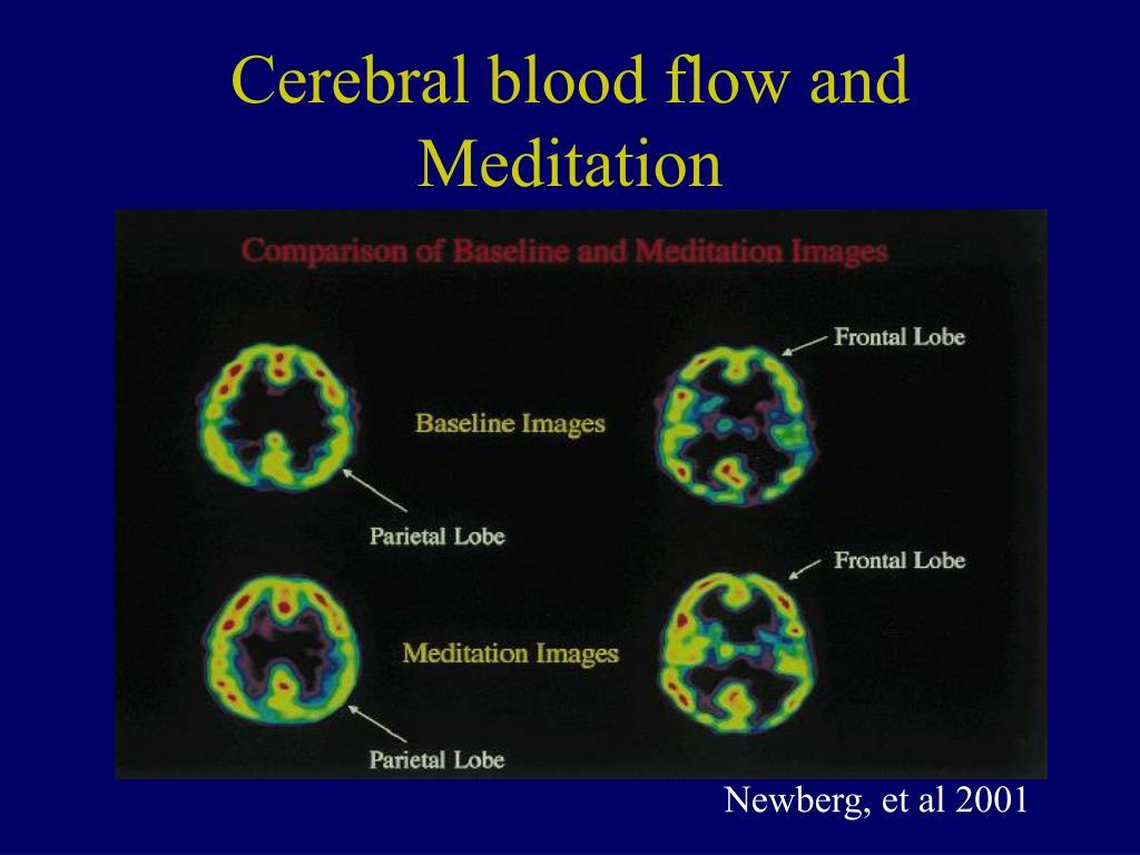 Cerebral blood flow and Meditation