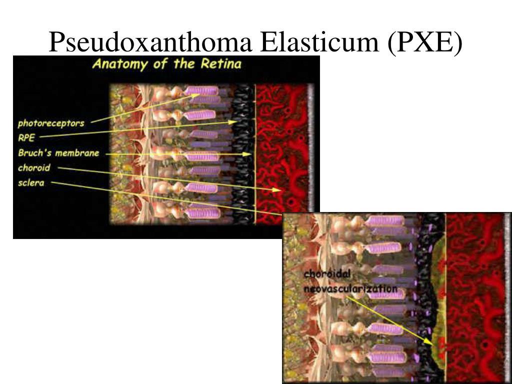 Pseudoxanthoma Elasticum (PXE)