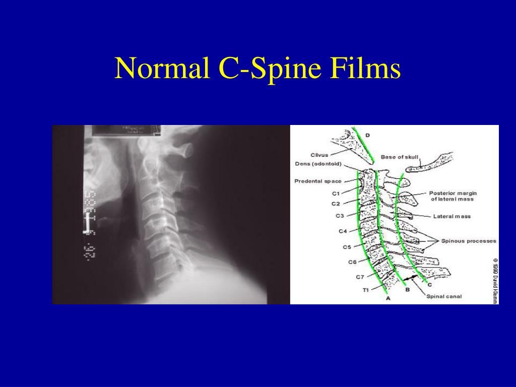 Normal C-Spine Films