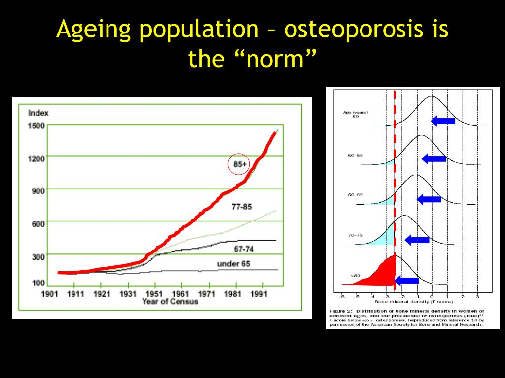 "Ageing population – osteoporosis is the ""norm"""
