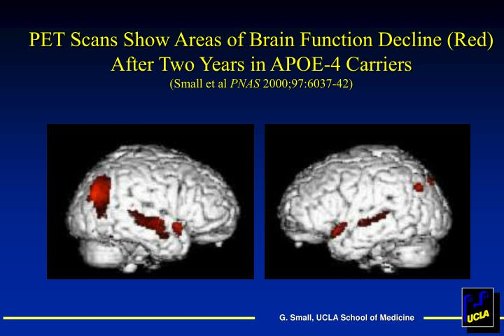PET Scans Show Areas of Brain Function Decline (Red) After Two Years in APOE-4 Carriers