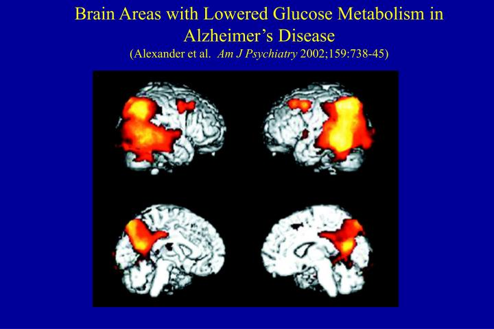 Brain Areas with Lowered Glucose Metabolism in Alzheimer's Disease