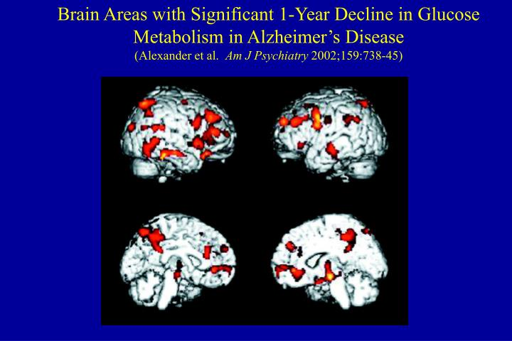 Brain Areas with Significant 1-Year Decline in Glucose Metabolism in Alzheimer's Disease