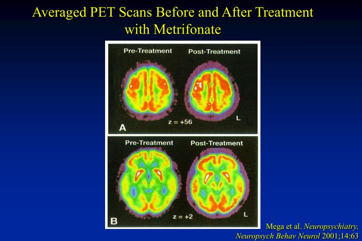 Averaged PET Scans Before and After Treatment with Metrifonate