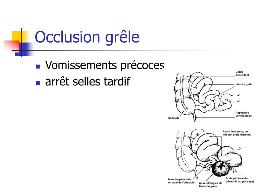 Occlusion grêle