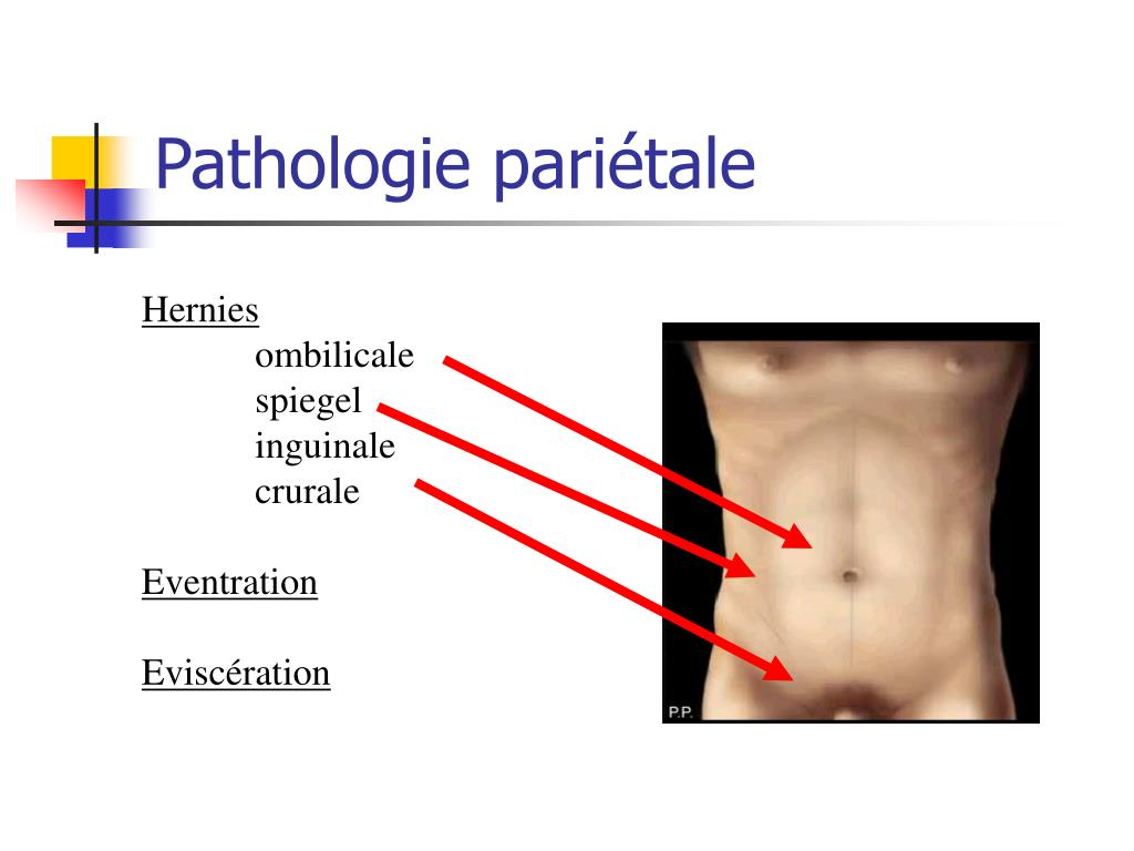 Pathologie pariétale