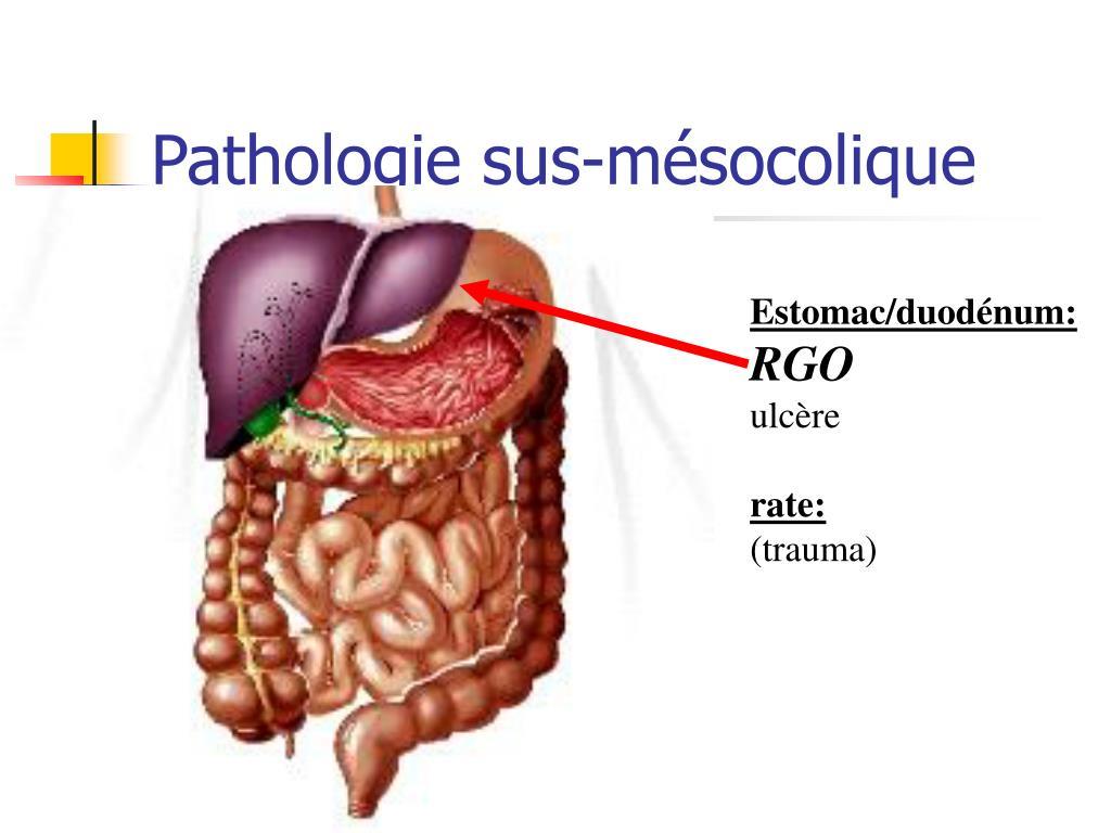 Pathologie sus-mésocolique