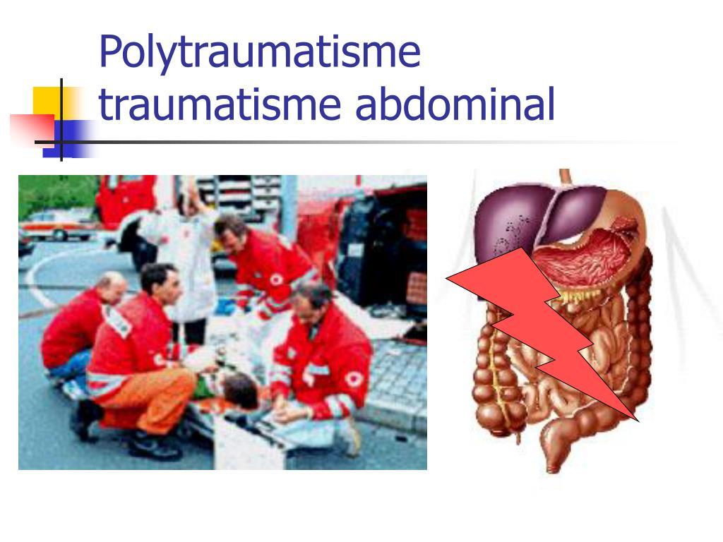 Polytraumatisme