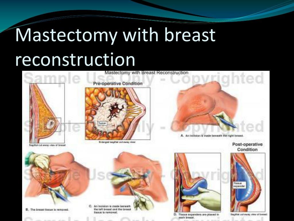 Mastectomy with breast reconstruction