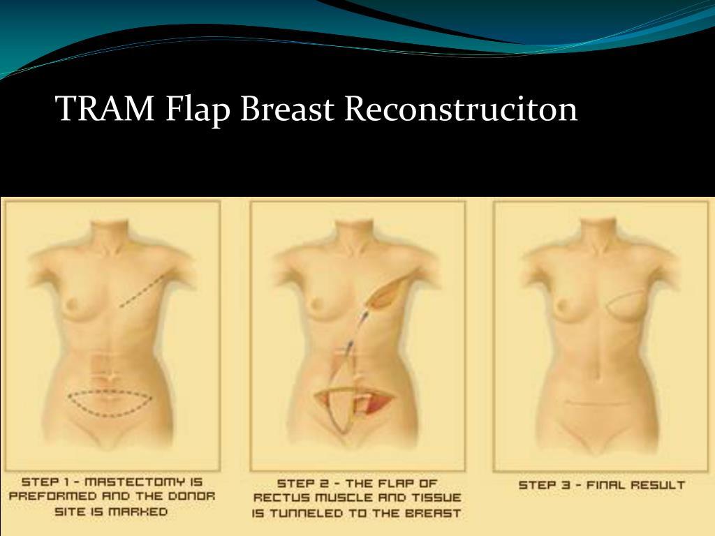 TRAM Flap Breast Reconstruciton