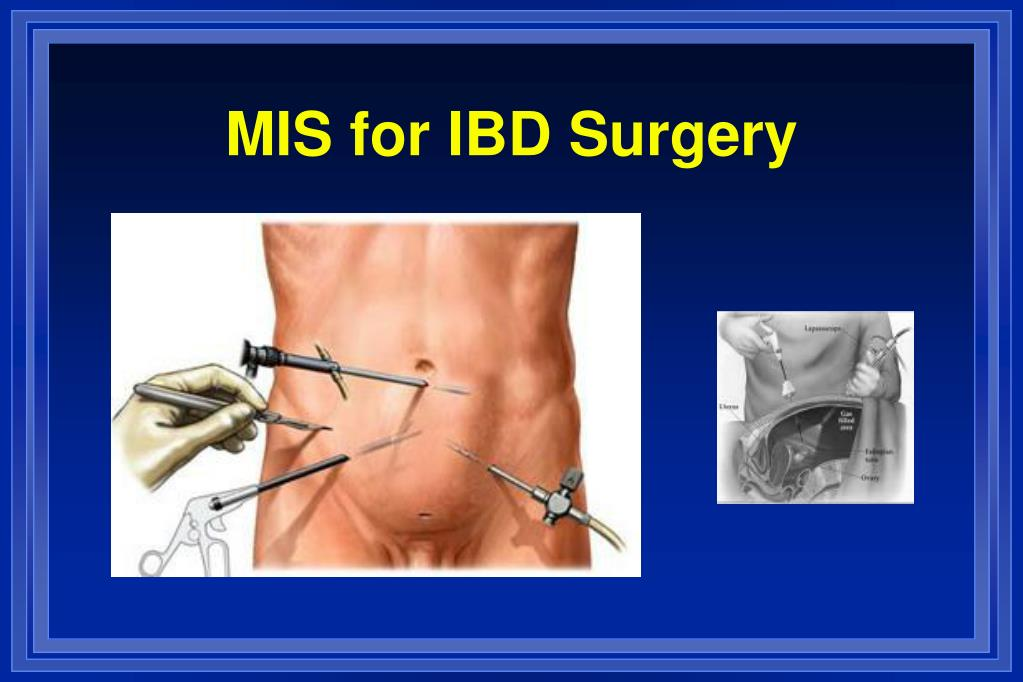 MIS for IBD Surgery