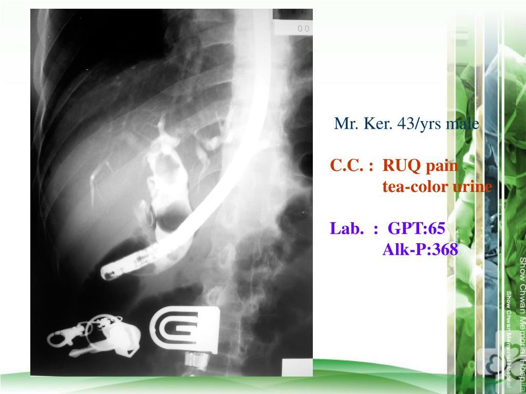 Mr. Ker. 43/yrs male