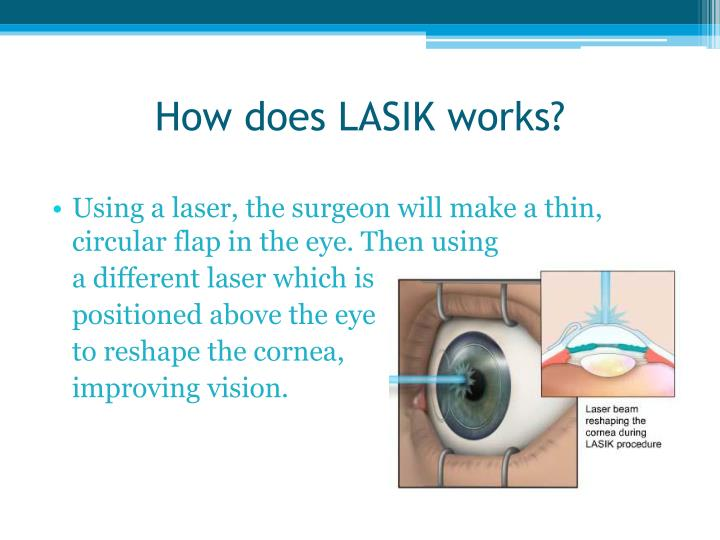 How does lasik works