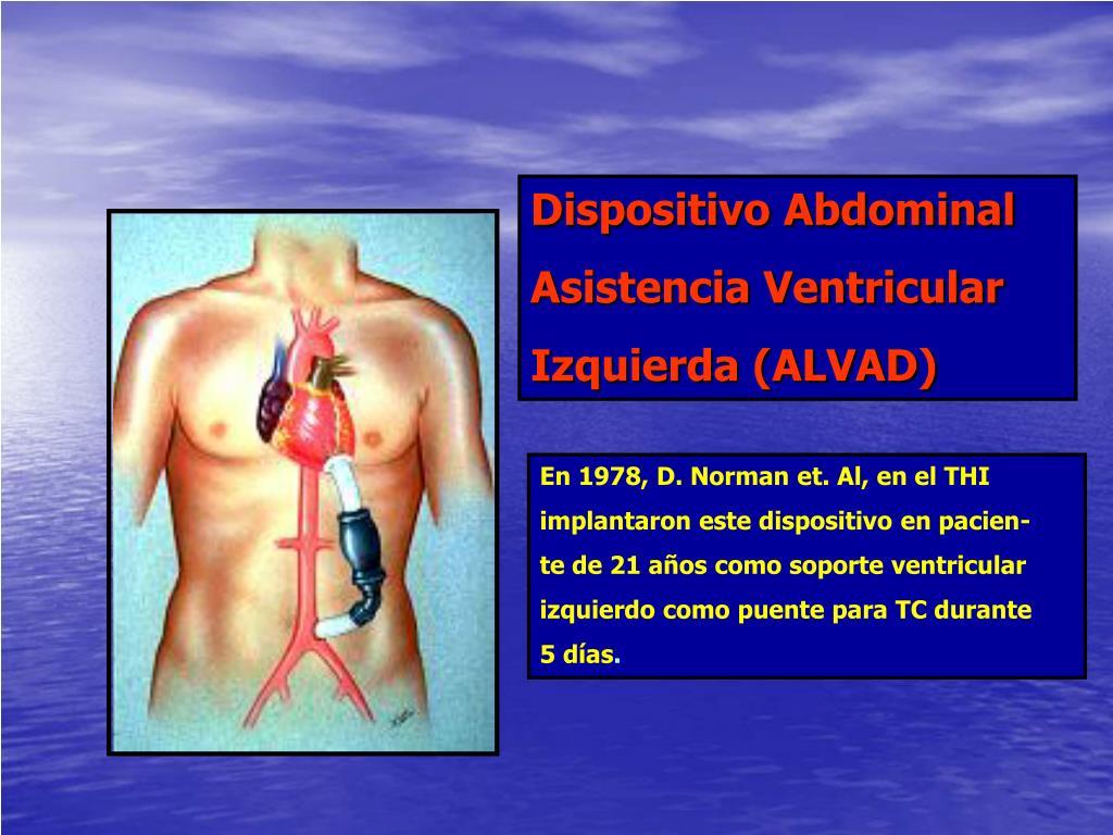 Dispositivo Abdominal