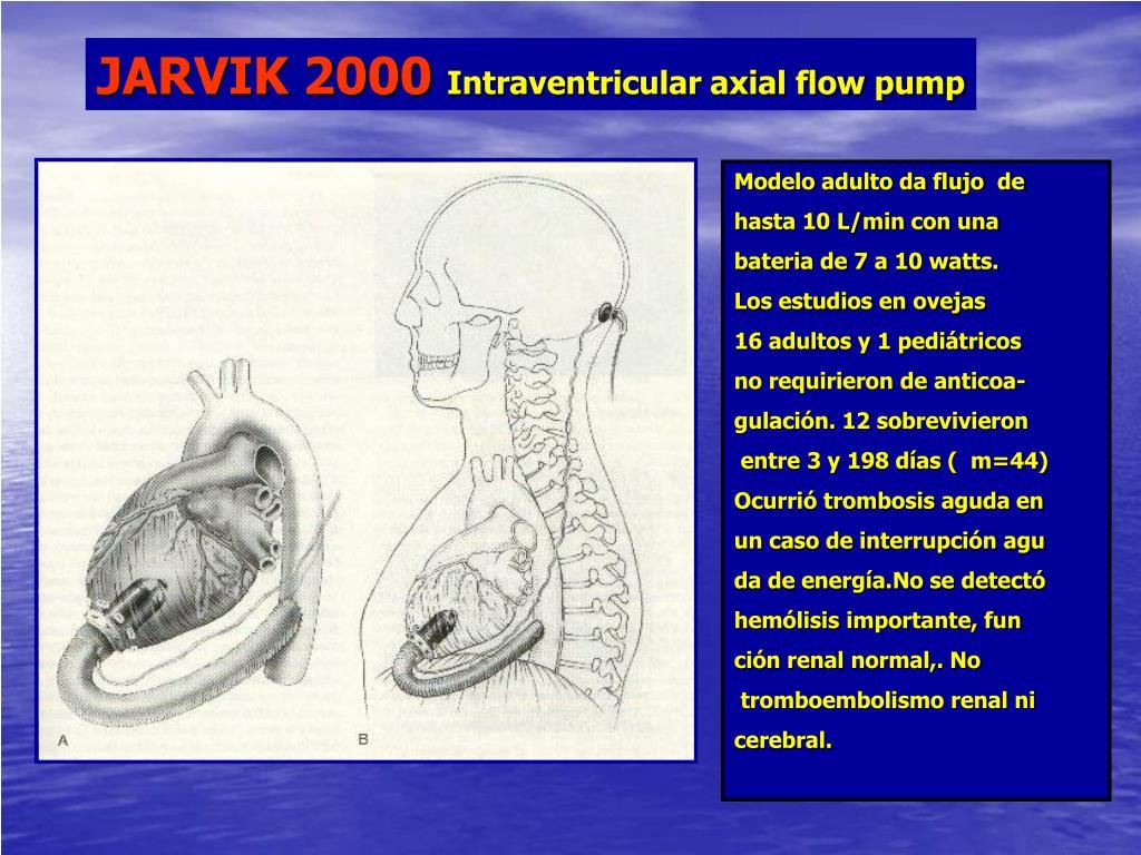 JARVIK 2000