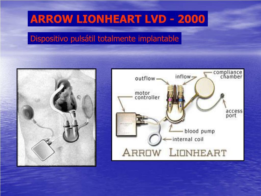 ARROW LIONHEART LVD - 2000