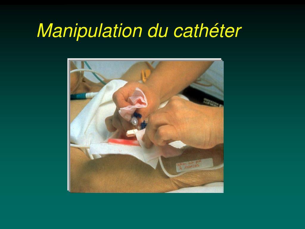 Manipulation du cathéter
