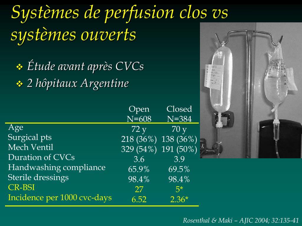 Systèmes de perfusion clos vs systèmes ouverts