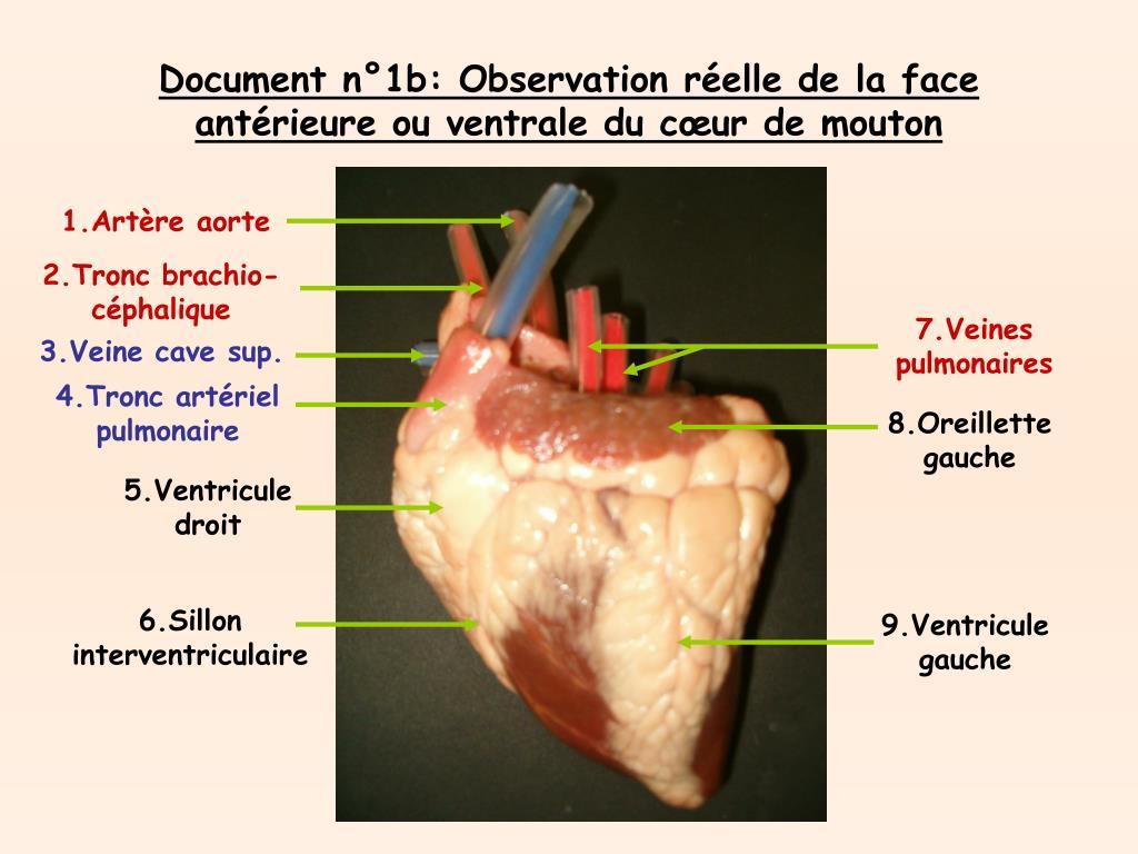 Document n°1b: Observation réelle de la face antérieure ou ventrale du cœur de mouton
