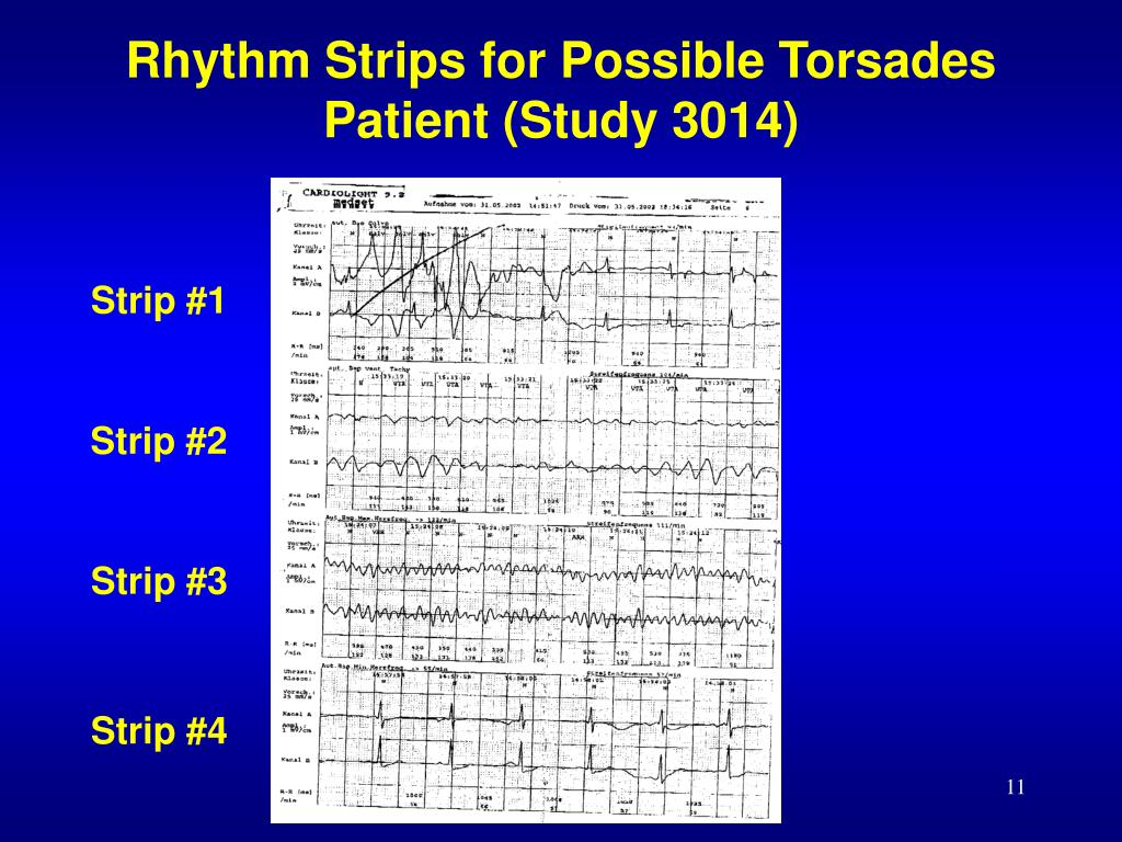 Rhythm Strips for Possible Torsades Patient (Study 3014)
