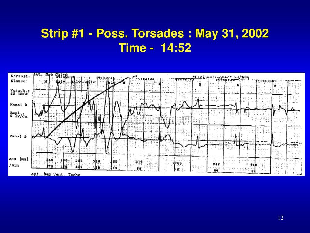 Strip #1 - Poss. Torsades : May 31, 2002