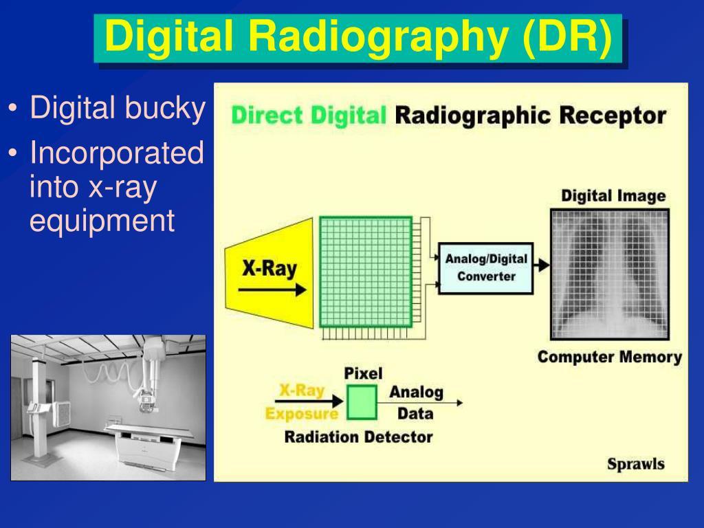 Digital Radiography (DR)