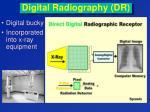 digital radiography dr