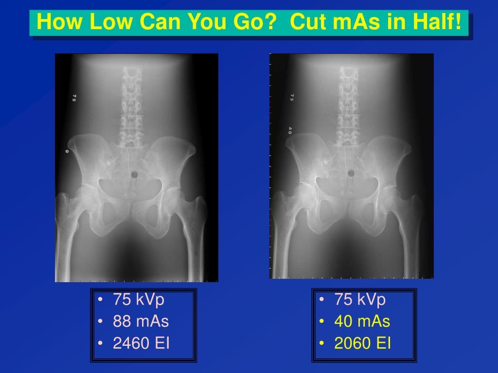 How Low Can You Go?  Cut mAs in Half!