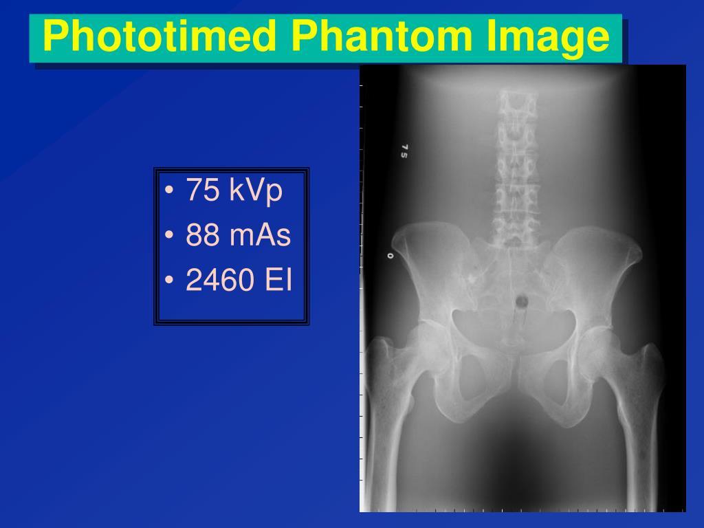 Phototimed Phantom Image