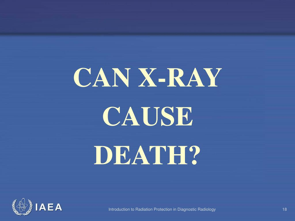 CAN X-RAY