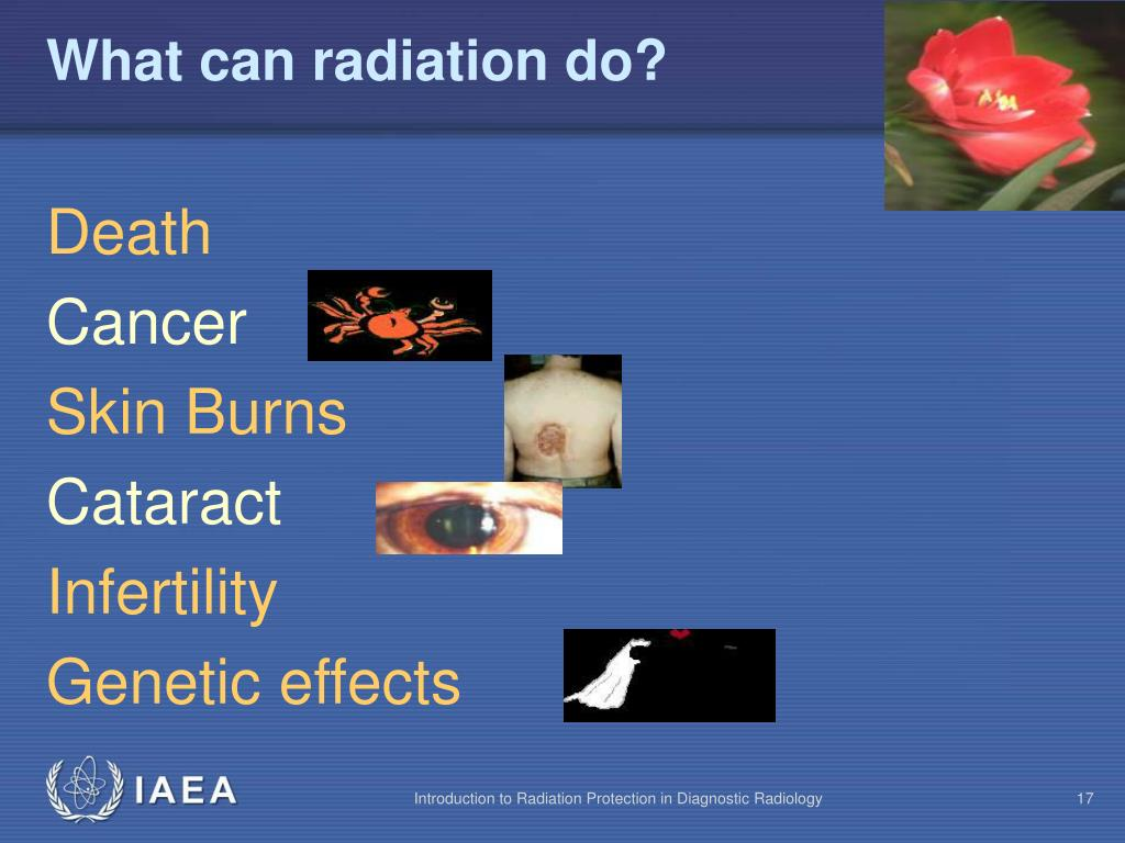 What can radiation