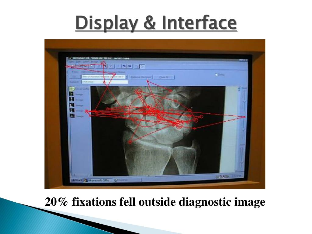 Display & Interface