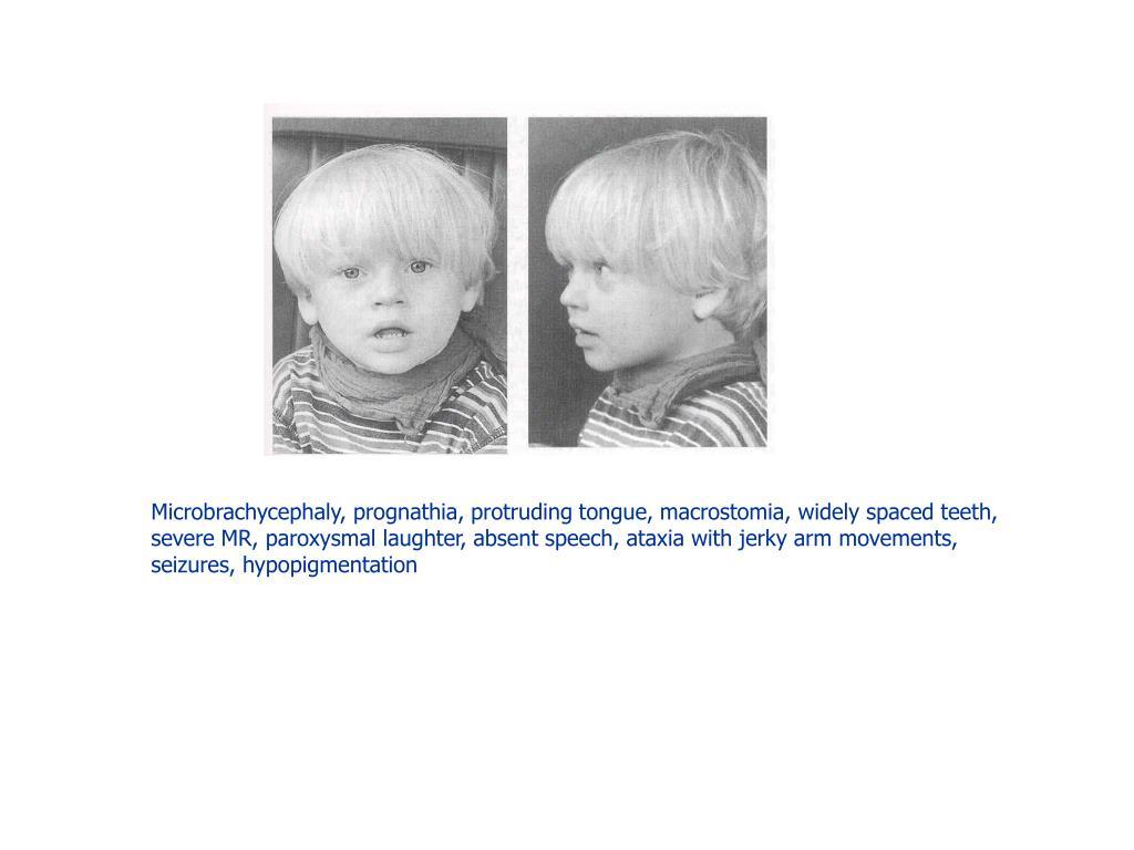 Microbrachycephaly, prognathia, protruding tongue, macrostomia, widely spaced teeth,