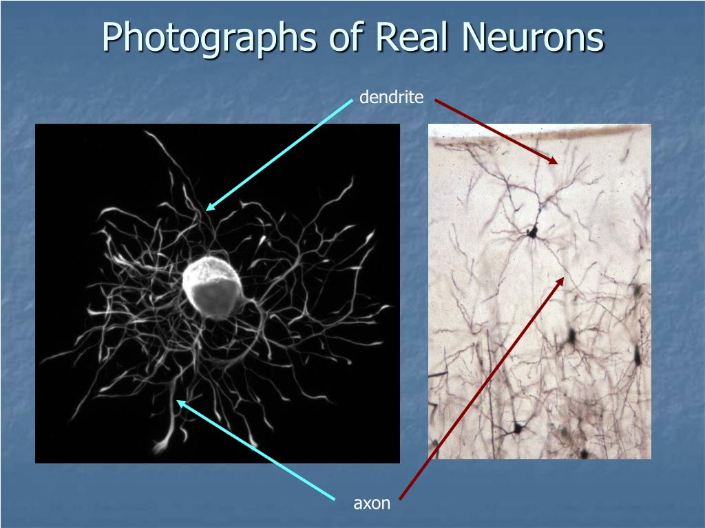 Photographs of Real Neurons